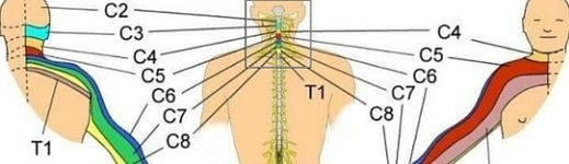 cervical radiculopathy feature
